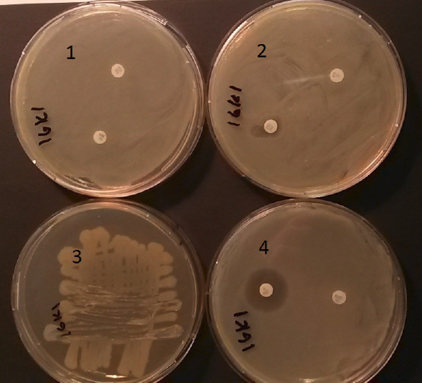 Bakteritassid